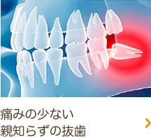 痛みの少ない親知らずの抜歯