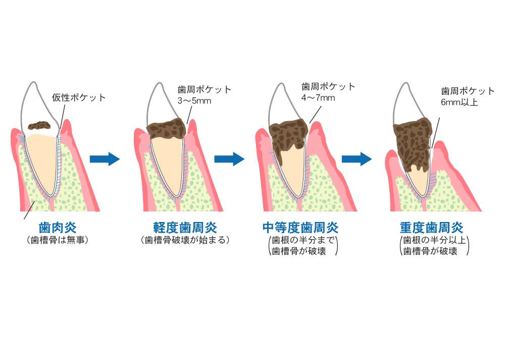 こだわりの歯周病治療