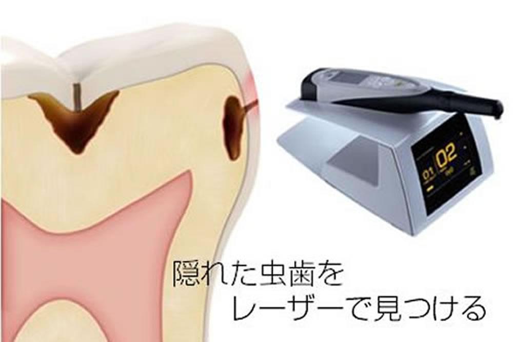 虫歯発見器・ダイアグノデント