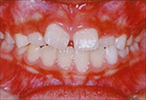 前歯の永久歯の隙間