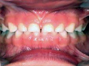 上唇小帯についての診断および処置