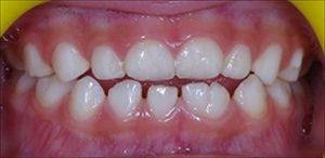 乳歯の癒合歯