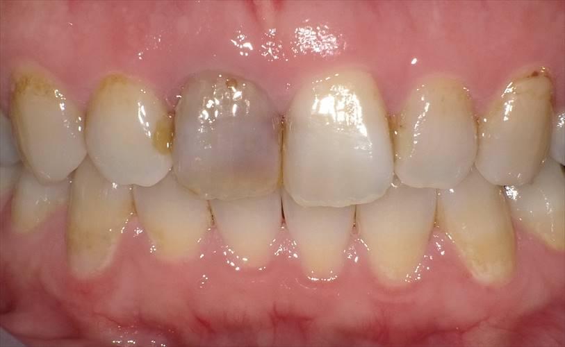 前歯の色が、気になる。。。