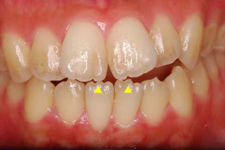 この歯は異常?