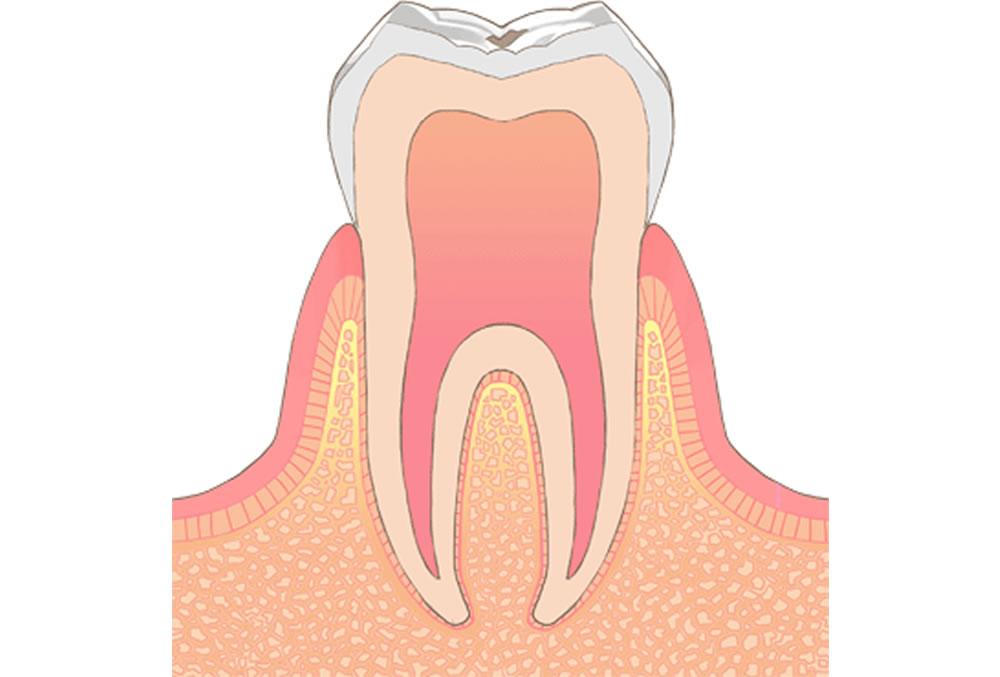 C0/C1 軽度の虫歯・エナメル質の虫歯