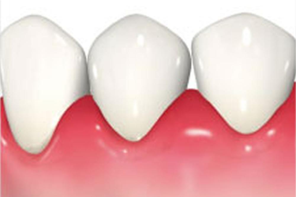 歯茎などの炎症