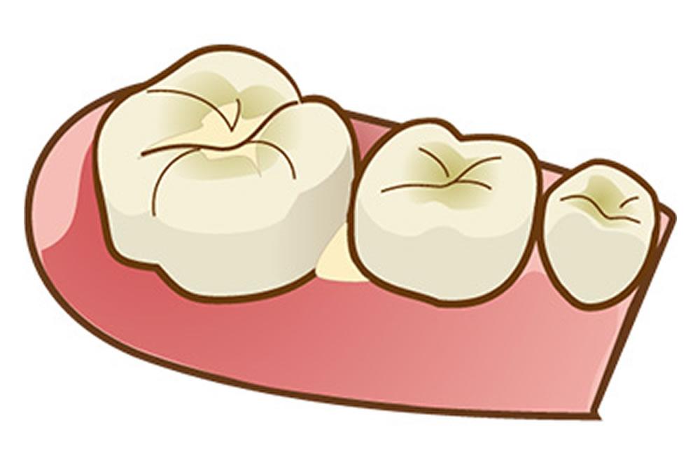 歯間に食べ物が挟まっている