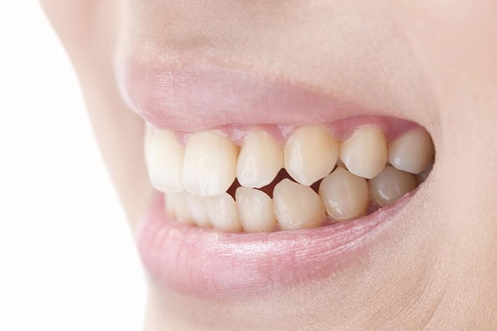 歯ぎしりや食いしばりの負担を軽減