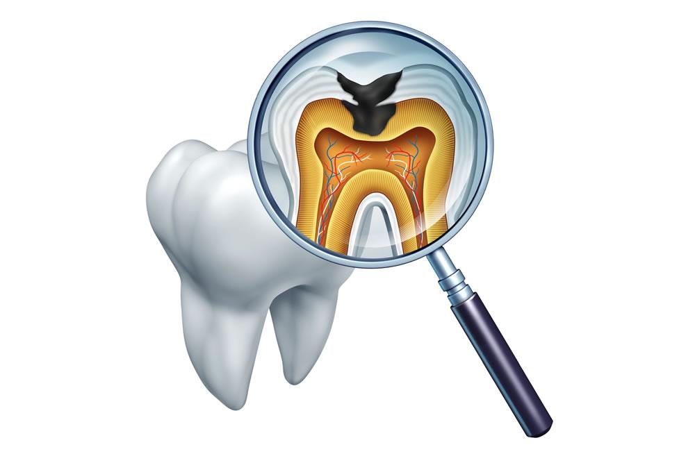 虫歯の再発