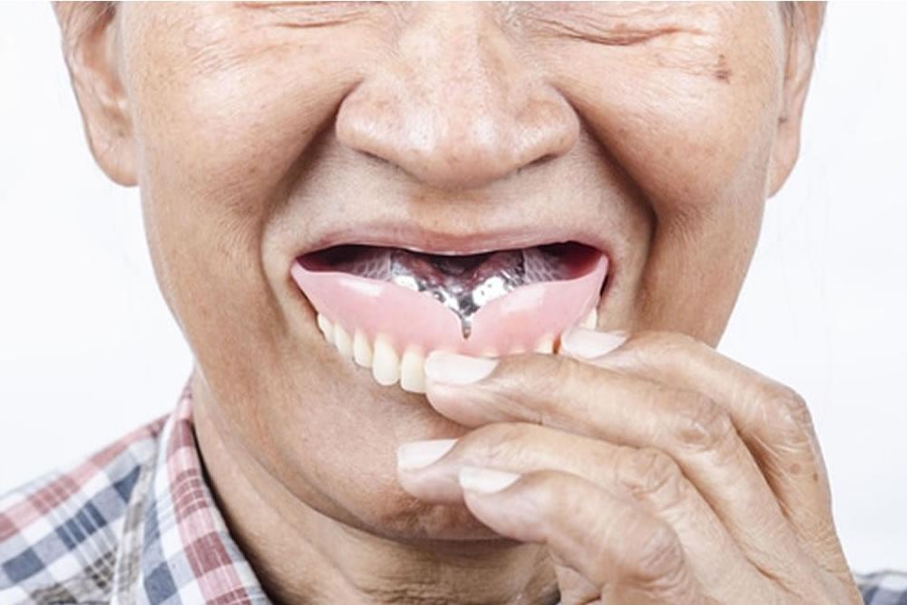 入れ歯の着脱方法