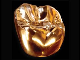 Gold(金)
